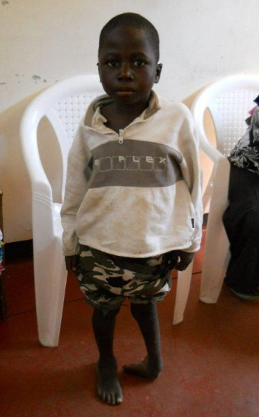 Amos with clubfoot in his left foot