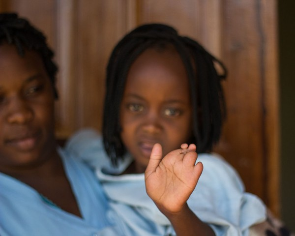 It's plastic surgery week here at CURE Zambia. The separation of fingers is a common surgery.