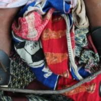 A photo of Chinsinsi Yonasi from Malawi. Learn more at cure.org/curekids/malawi/2012/01/chinsinsi_yonasi/