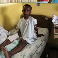 A photo of Tofik Sultan from Ethiopia. Learn more at cure.org/curekids/ethiopia/2012/02/tofik_sultan/