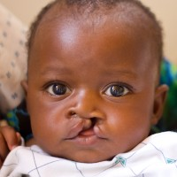 A photo of Sherline Divasha from Kenya. Learn more at cure.org/curekids/kenya/2012/03/sherline_divasha/